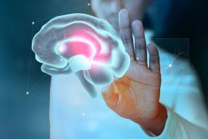 اختلال در مغز